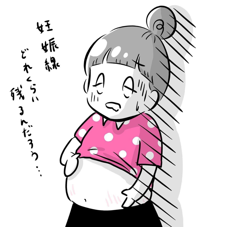 できてしまった妊娠線、その後[夫婦のじかん大貫さんのママ芸人日記#115]